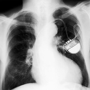 Guidant Defibrillator
