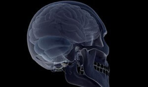 Brain Injury Cases
